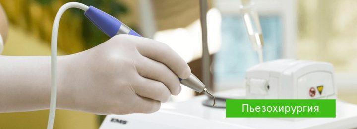 Пьезохирургия в стоматологии